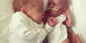 Read more about the article Η απίστευτη ιστορία μωρού που γεννήθηκε 458 γραμμ. -Η αγκαλιά του δίδυμου αδελφού το βοηθά να επιβιώσει [φωτό]