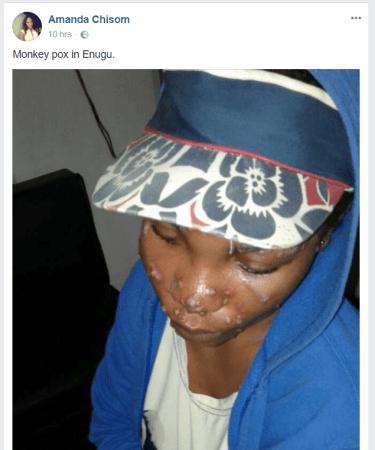 Monkey Pox Hits Enugu Today After Hitting Lagos Yesterday