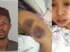 Lady calls out Nigerian boyfriend for beating her up in Malaysia (Photos/Video)