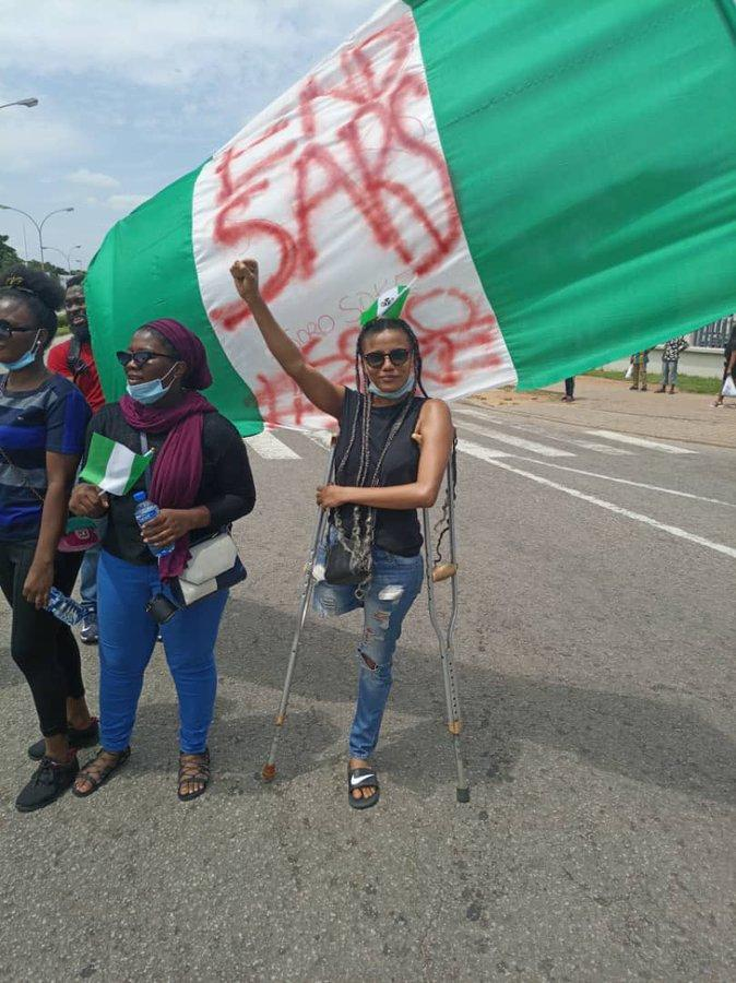 Nigerians raise over N3million to buy prosthetic leg for disabled lady who joined #EndSARS protest