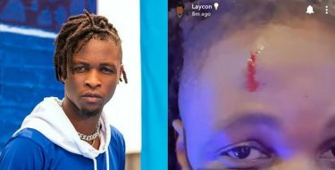 Fans Worried As Laycon Sustains Head Injury (Photo/Video)