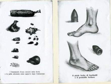 Garibaldi, reperti dalla Cartella Clinica