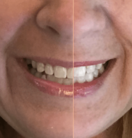 How to Professionally Whiten Your Teeth at Home | GlamKaren.com