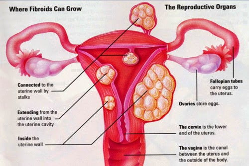 Fibroids And Infertility