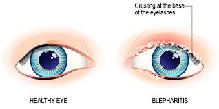 Blepharitis What Is It And How To Treat It