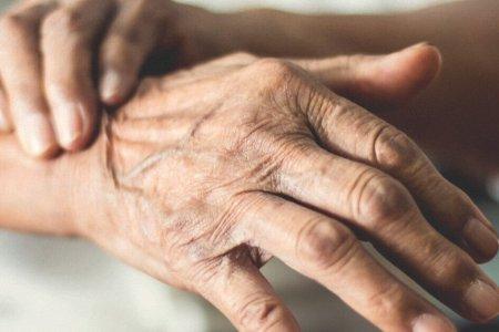 Parkinson Disease Treatments
