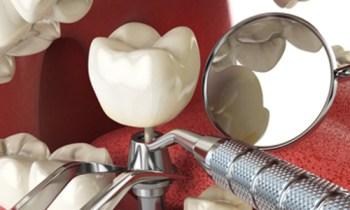 fuss about dentali mplants