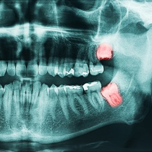 3 things to know about wisdom teeth