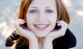 care tips for braces