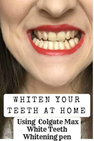 whiten your teeth at home using colgate max teeth whitening pen