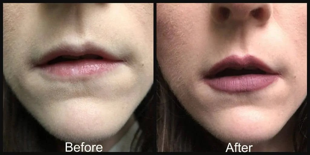 before and after w7 skinny lipping apple and pears liquid lipstick duo