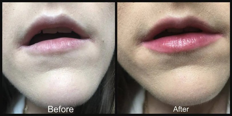 cyo lip and cheek stain lips