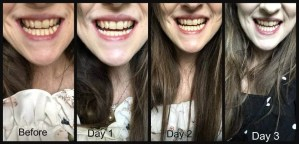 Discover if Billion Dollar Smile blue light can give you whiter teeth 2