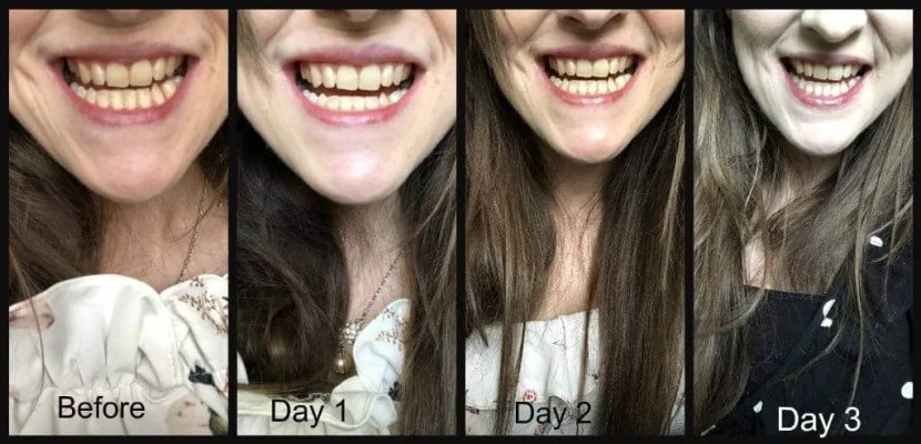 Discover if Billion Dollar Smile led teeth whitening kit can give you whiter teeth 2
