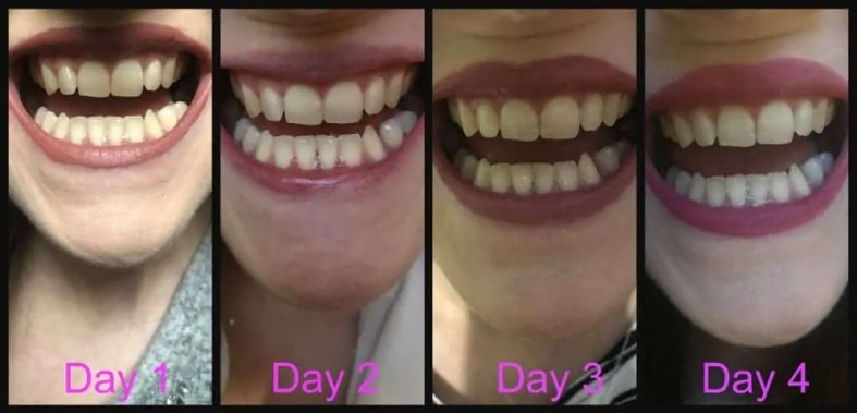 Make a great first impression with Snow teeth whitening kit before and after
