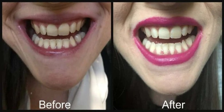 snow teeth whitening kit before and after