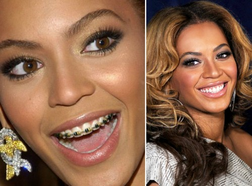 Beyoncee Famous Actresses with Braces
