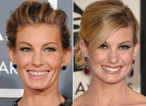 Faith Hill Famous Actresses with Braces