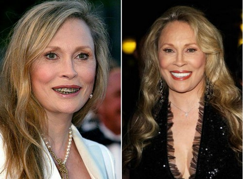 Faye Dunaway Famous Actresses with Braces