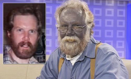 Blue Man Disease