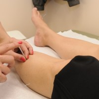 Acupuncture - The Real Benefits