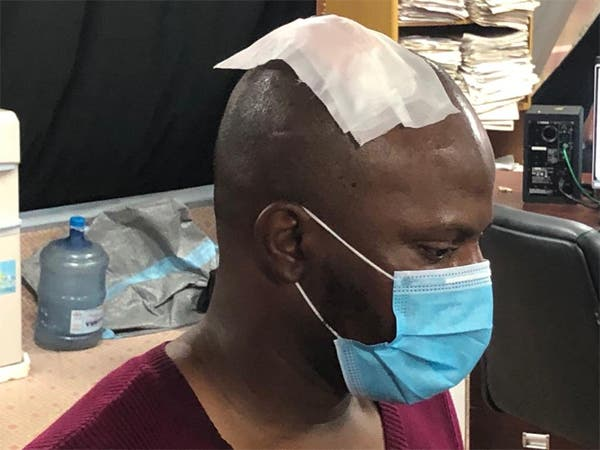 Police Assaulted And Breaks The Head Of Arise TV Cameraman Francis Ogbonna-Video