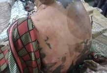 30 Year Old Woman Hauwa Auwal Pours Hot Water On Her Co-wife And 4-year-old Stepdaughter In Kano