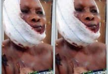 Photo Of A Woman Morenikeji Salami, Fulani Herdsmen Attacked And Removed Her Finger And Shatter Her Jaw
