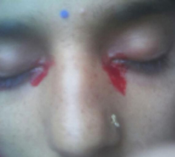 Indian woman who bleeds from her eyes during her period