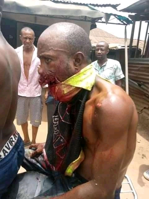 Disturbing Photos Of Man Hit By A Stray Bullet In Akwa Ibom As Millitary Commences Operation