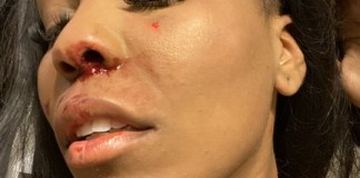 Photos Of A Lady Beaten By Her Lesbian Girlfriend