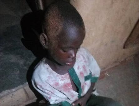 Suspected ritualist cuts off 7-year-old boy's Hand in kwara state (photos)