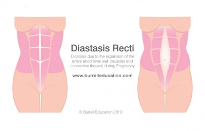 SPECIALIST TRAINING FOR BEFORE, DURING AND AFTER PREGNANCY Glossop Personal Training Diastasis Recti