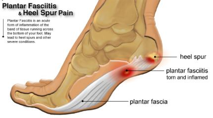 What is Plantar Fasciitis Pain?