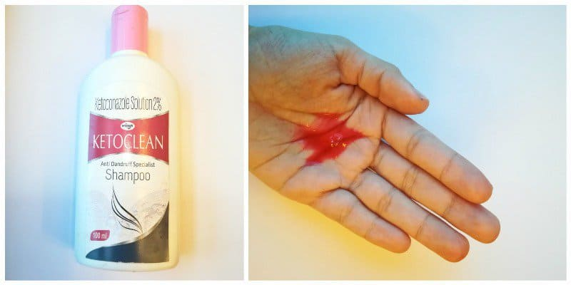 Ketoclean Anti-Dandruff Specialist Shampoo
