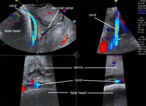 Ultrasound Atlas | GLOWM