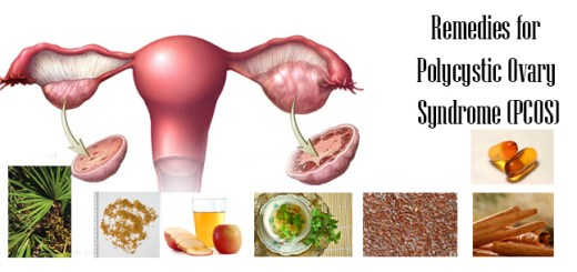 Remedies of Polycystic Ovary Syndrome
