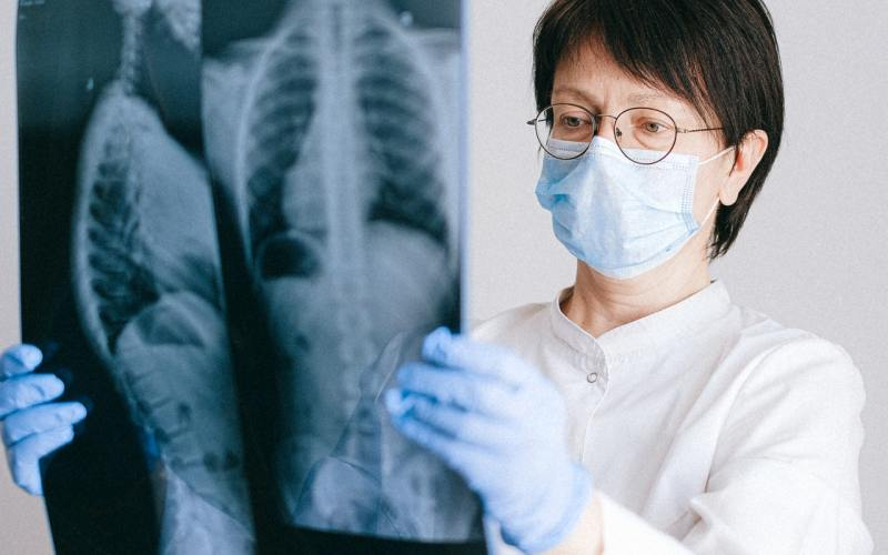 Lung Fibrosis Cases on Rise in Goa
