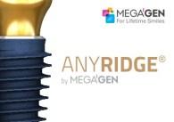 anyridge-megagen dental implant