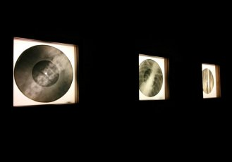 X-ray Audio - x-rays on lightboxes