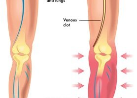 What is Deep Vein Thrombosis?