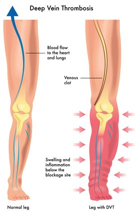 Deep Vein Thrombosis_DP_60338509_xs