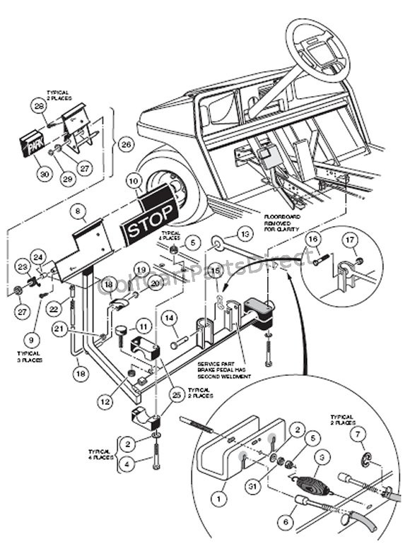 Diagram Golf Cart Brakes Diagram