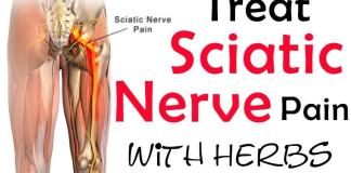 Treat Sciatica Pain With Herbs