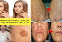 Famous Dermatologist Revealed His Simple Trick How To Remove Brown Spots On Face And Skin