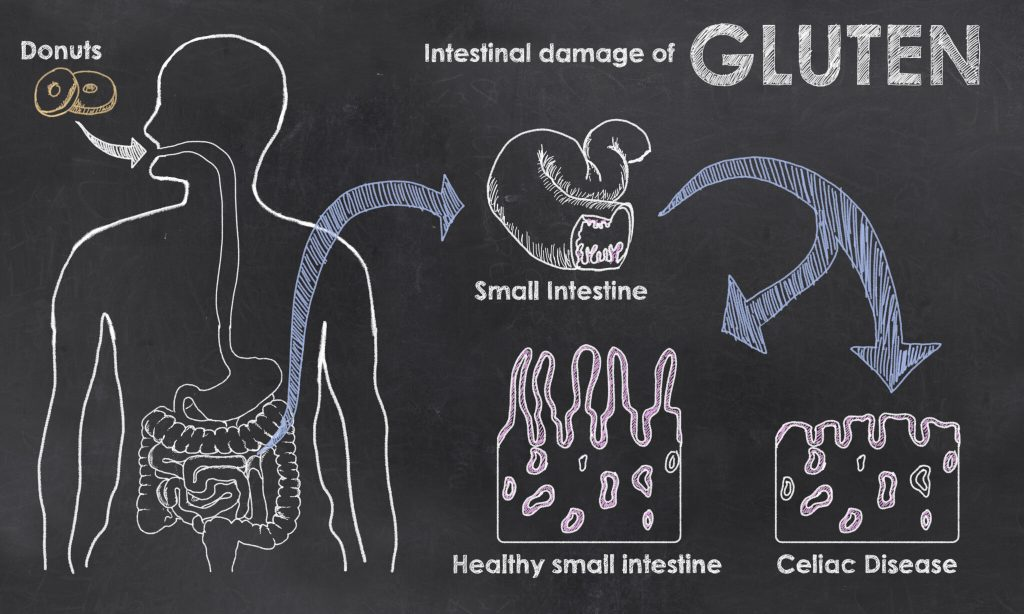 What is Celiac Disease Diagram
