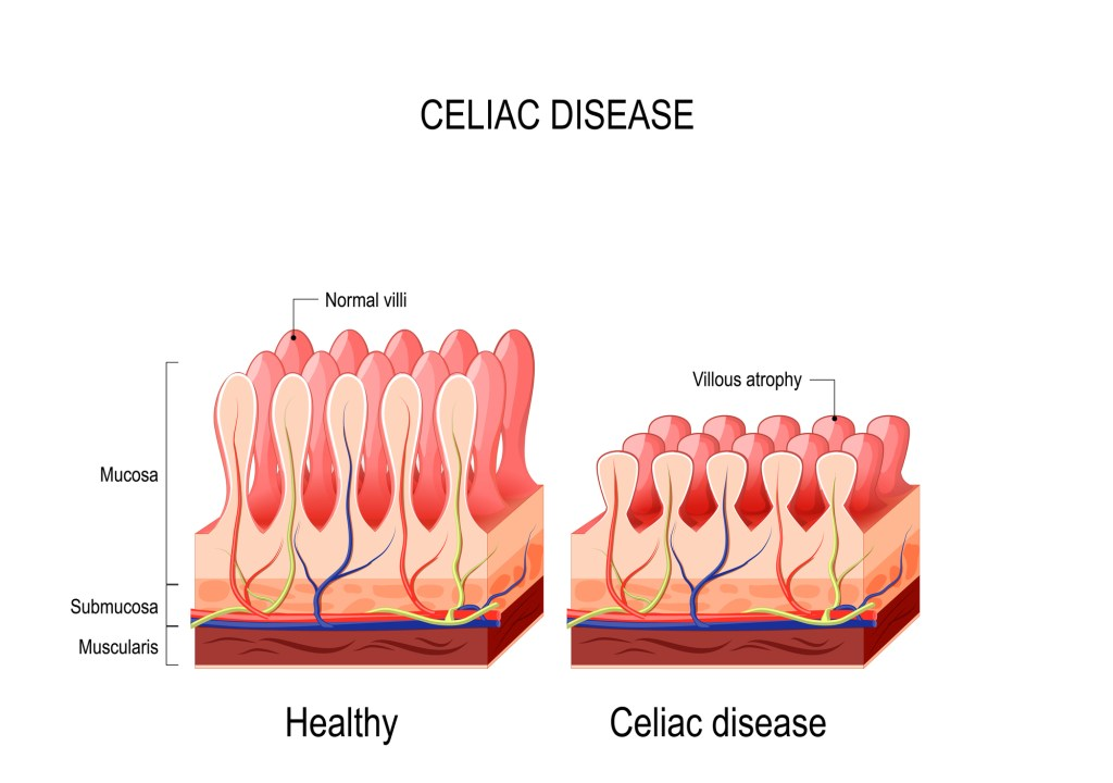 Diagram of what happens to small intestine in celiac disease