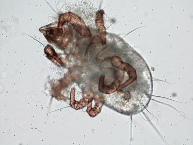 Atopy - Dust mites
