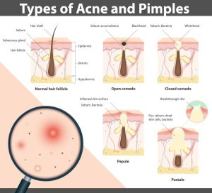 What Is a Papule? Know The Symptoms And Treatment To