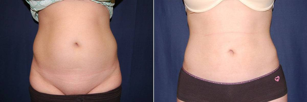 76 Liposuction pictures before and after